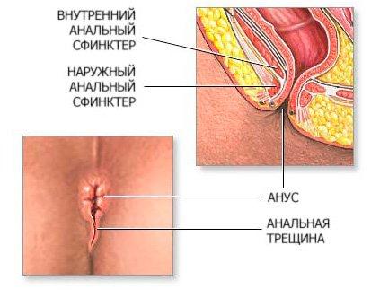 Анал, анальный секс - pornolaik.com